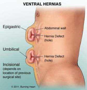 4d0b91ff209b42f7499f98f18775357c hernia causes, symptoms, diagnosis, treatment and ongoing care