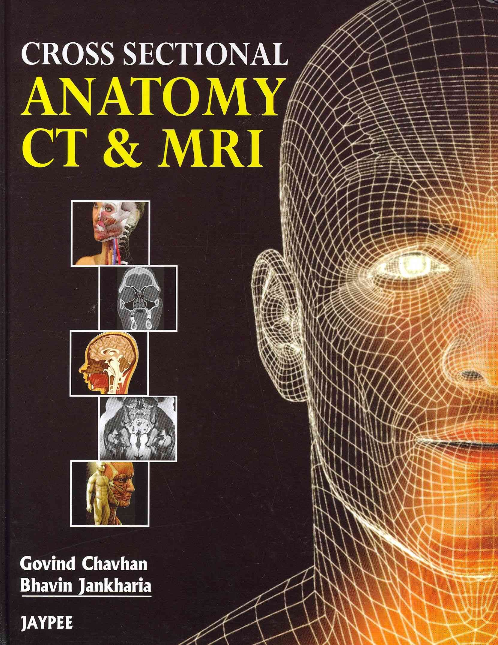 Cross Sectional Anatomy CT & MRI | Products | Pinterest | Online ...