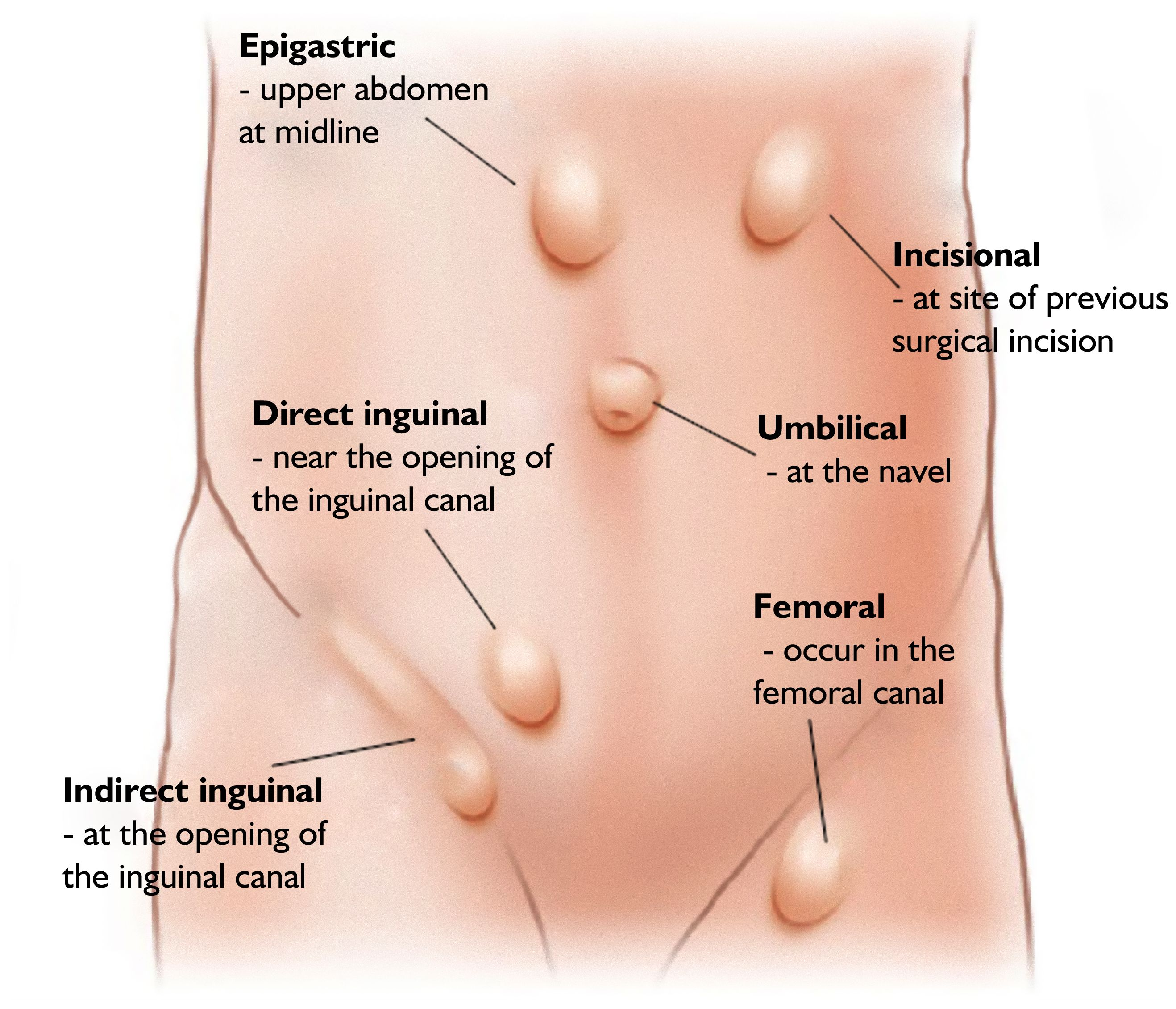 medium resolution of inguinal hernia anatomy in female hernia repair teeth to toe