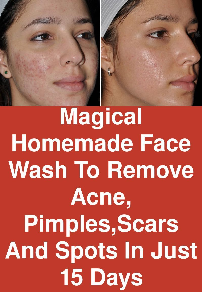 Magical homemade face wash to remove acne, pimples,scars and spots in just 15
