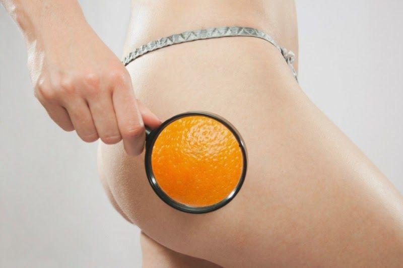 que hacer para eliminar la piel de naranja