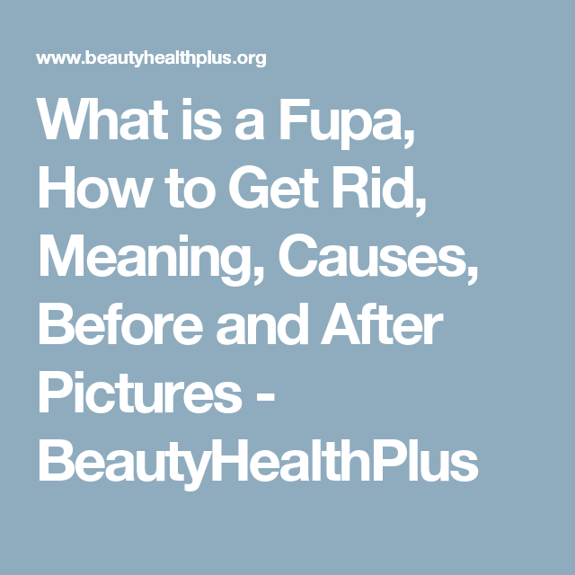 What Is A Fupa How To Get Rid Meaning Causes Before And After