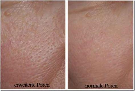 3 masken f r feine poren besser gesund leben clever pinterest kosmetik gesundheit und. Black Bedroom Furniture Sets. Home Design Ideas