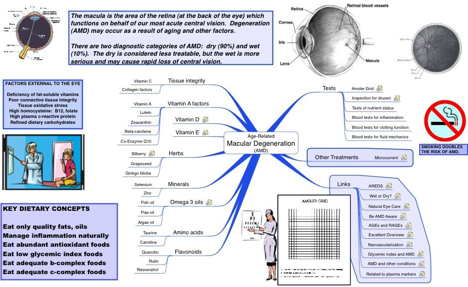 Mind Map Of Armd Mind Mapping Software Macular Degeneration