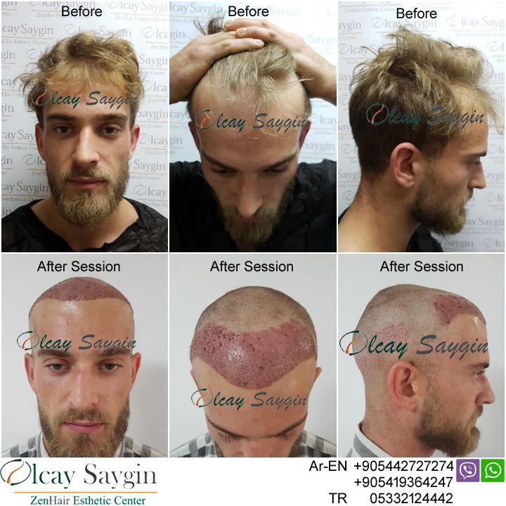 Hair Transplant UK , hair transplant turkey, olcay saygin ...