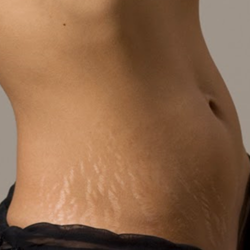 How to Get Rid of Stretch Marks Quickly | Stretch marks ...
