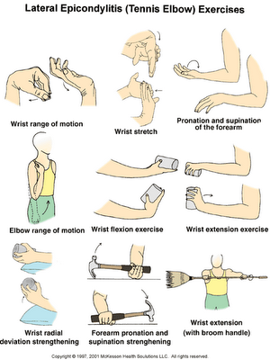 Tendonitis Tennis Elbow Exercises And Stretches Tennis Elbow Tennis Elbow Exercises Elbow Exercises