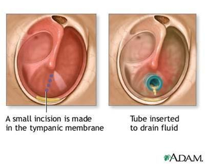 Ear Infections And Fluid In The Middle Ear Can Lead To Temporary Hearing Loss And Speech Delays In Children The Middle Ear Ear Infection Remedy Ear Infection