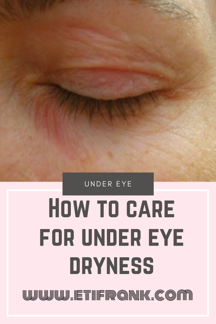 Fast Way Of Curing Dryness Under The Eye The Skin Around Your Eyes Is Very Fragile Without Proper Care It Dry Skin Under Eyes Cure Dry Skin Undereye Dryness