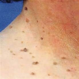 What Causes Skin Tags? - My Health Maven