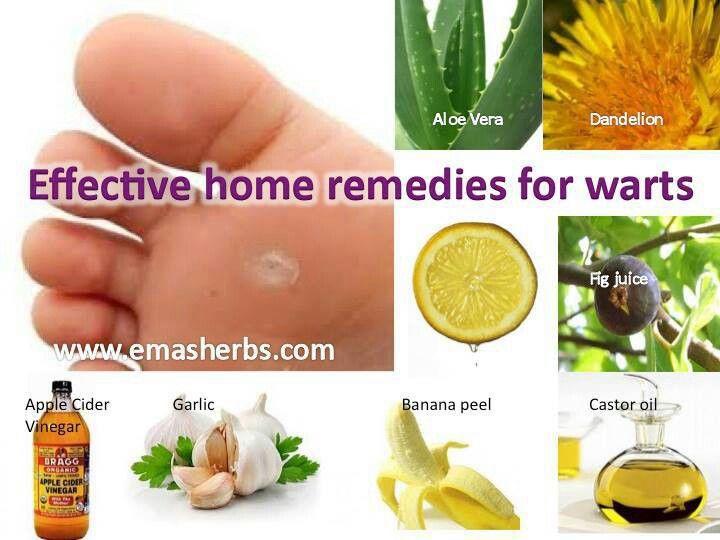 Wart removal | A la natural | Warts remedy, Warts, Natural