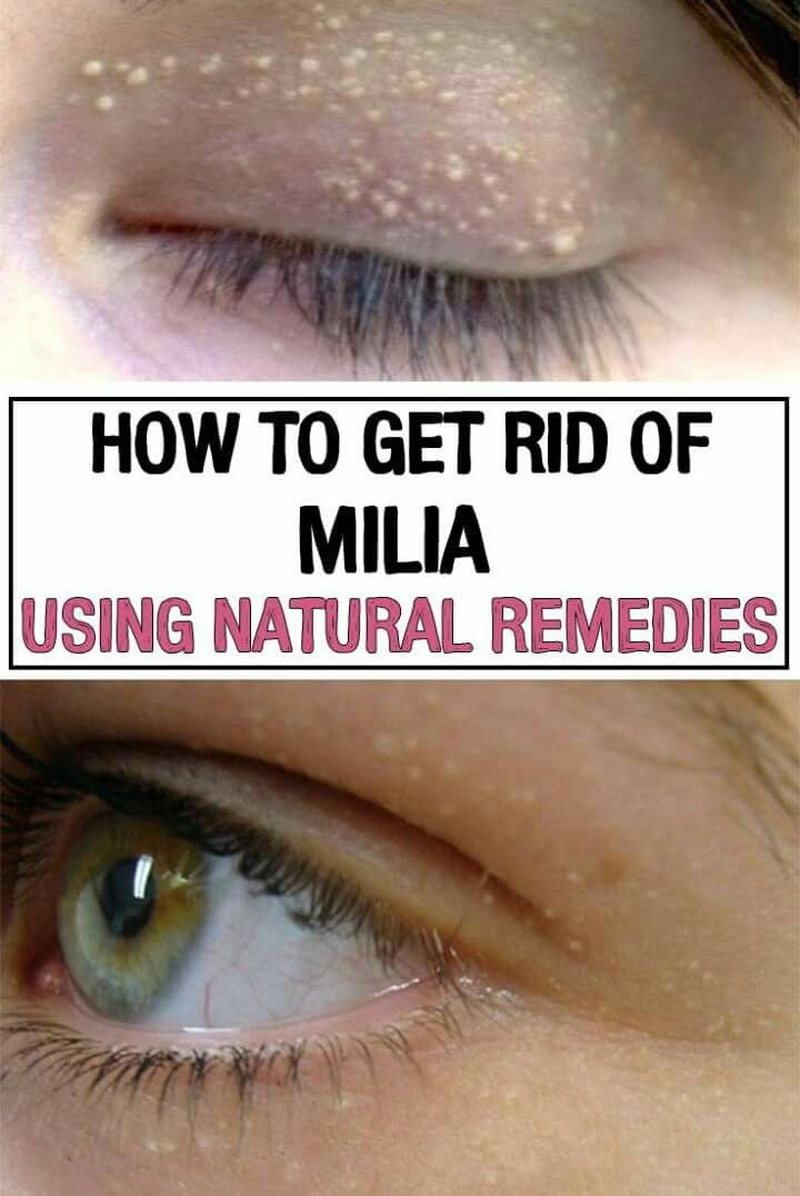 Treatment milia under eyes home The Ultimate