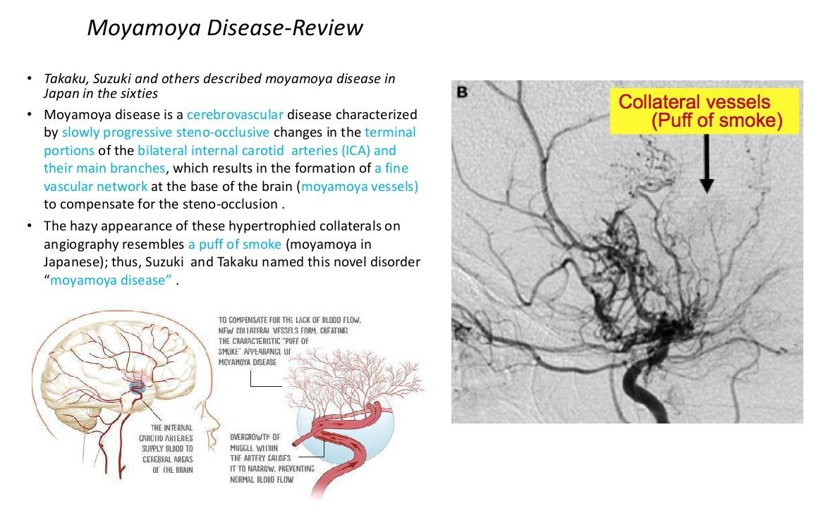 Moya Moya disease - Occlusion of Terminal Internal Carotid arteries ...