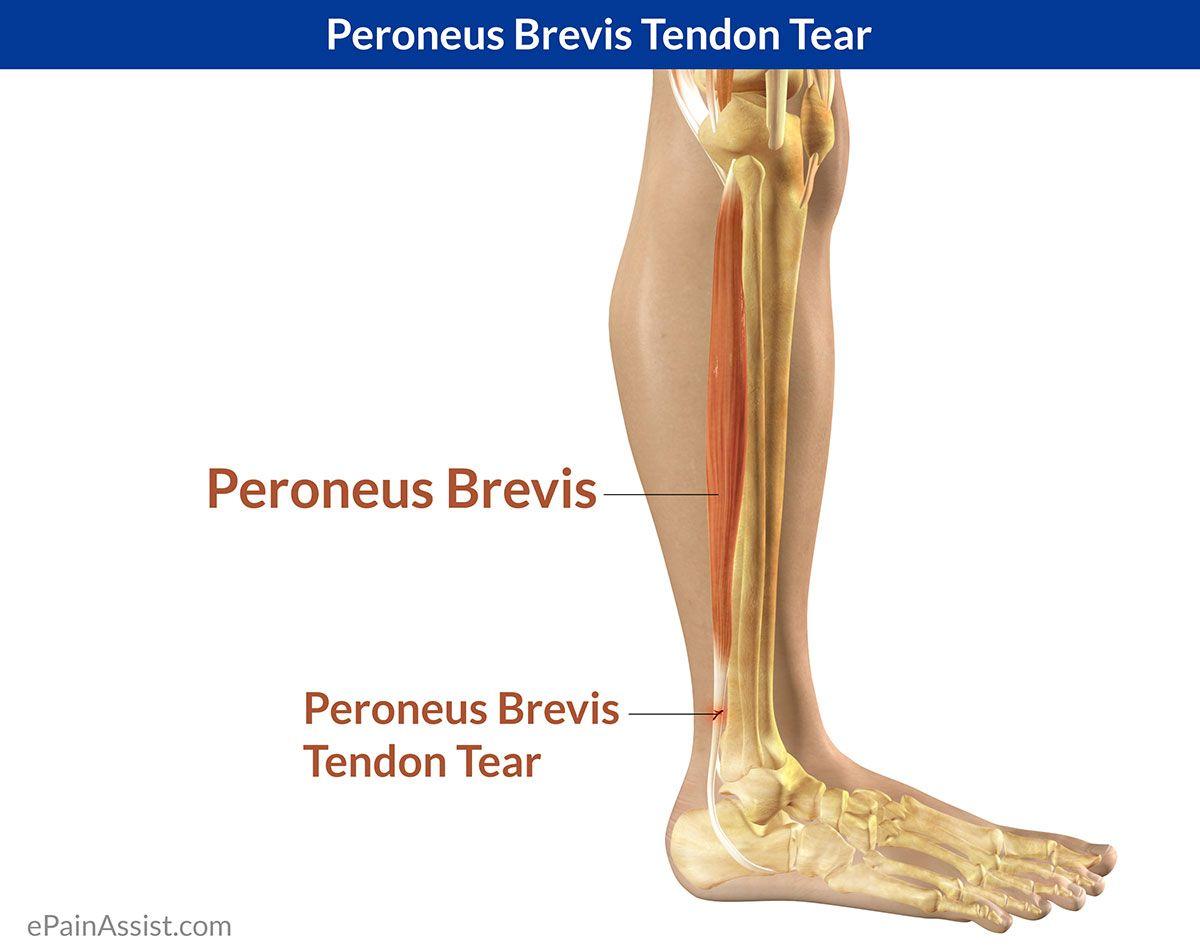 Peroneus Brevis Tendon Tear   Tendon tear, Exercises and Hypermobility