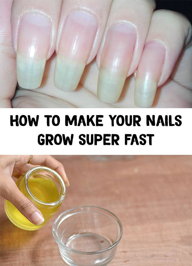 How to make your nails grow super fast