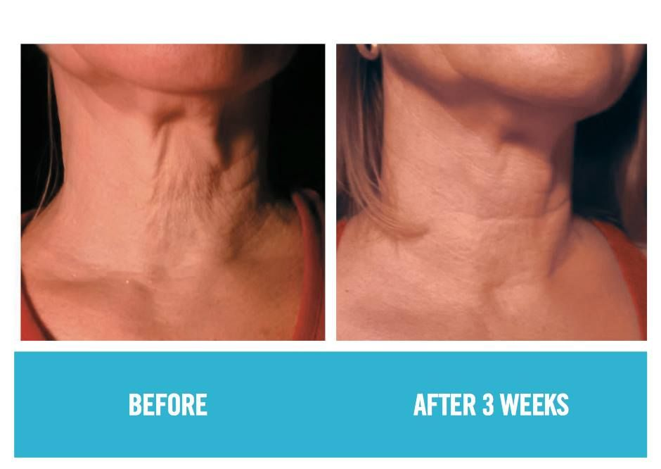 Cindy S Neck After Redefine Rodan And Fields Before And