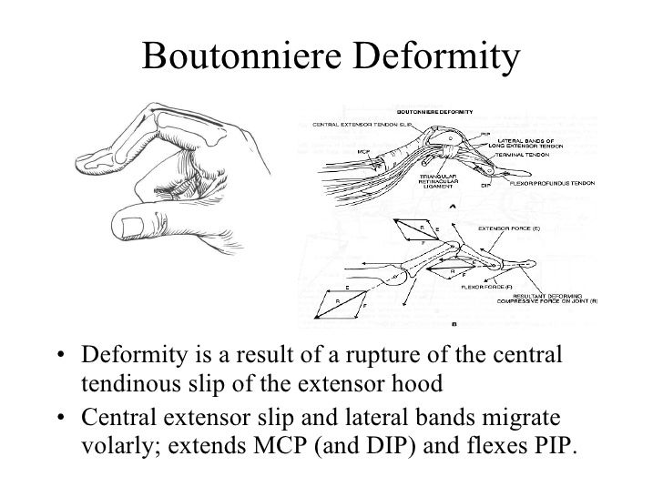 Image Result For Boutonniere Deformity  Pt    Therapy
