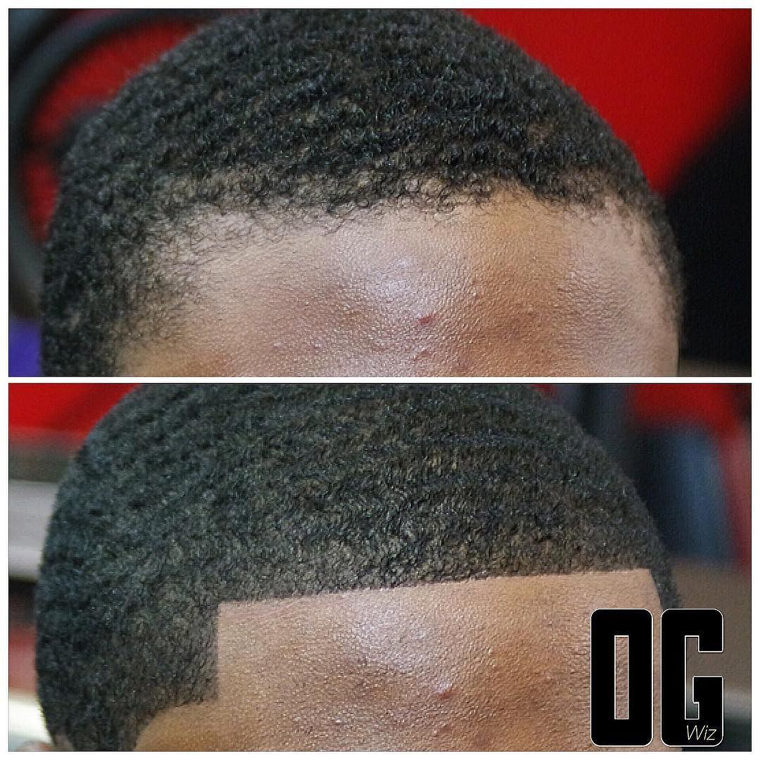 27+ Thinning hairline black male ideas