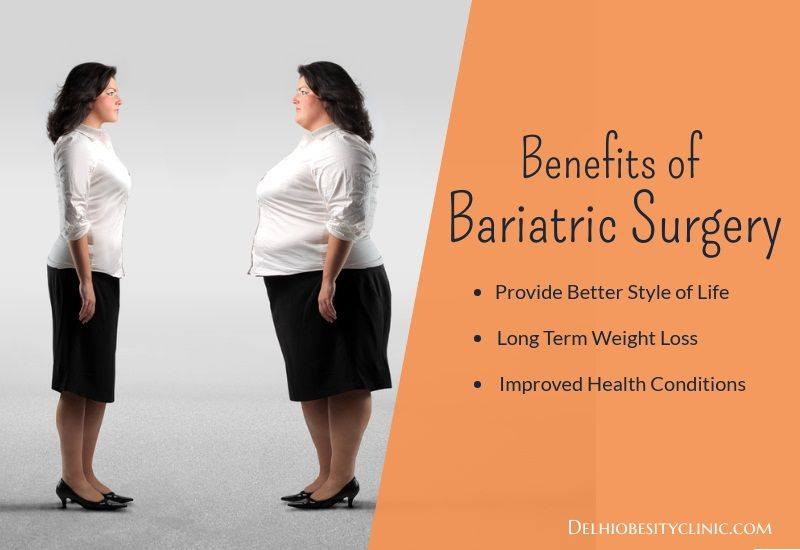 Weight loss somerset ky