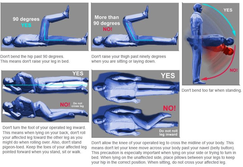 Transfers precautions and handouts on pinterest hip replacement
