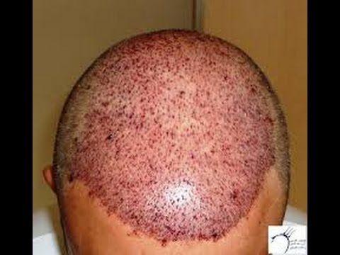 Pin On زراعة الشعر