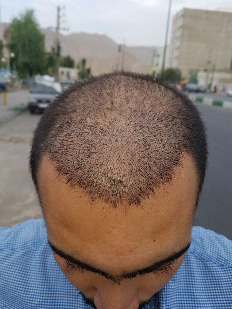 After 10 days (With images) Laser clinics, Hair
