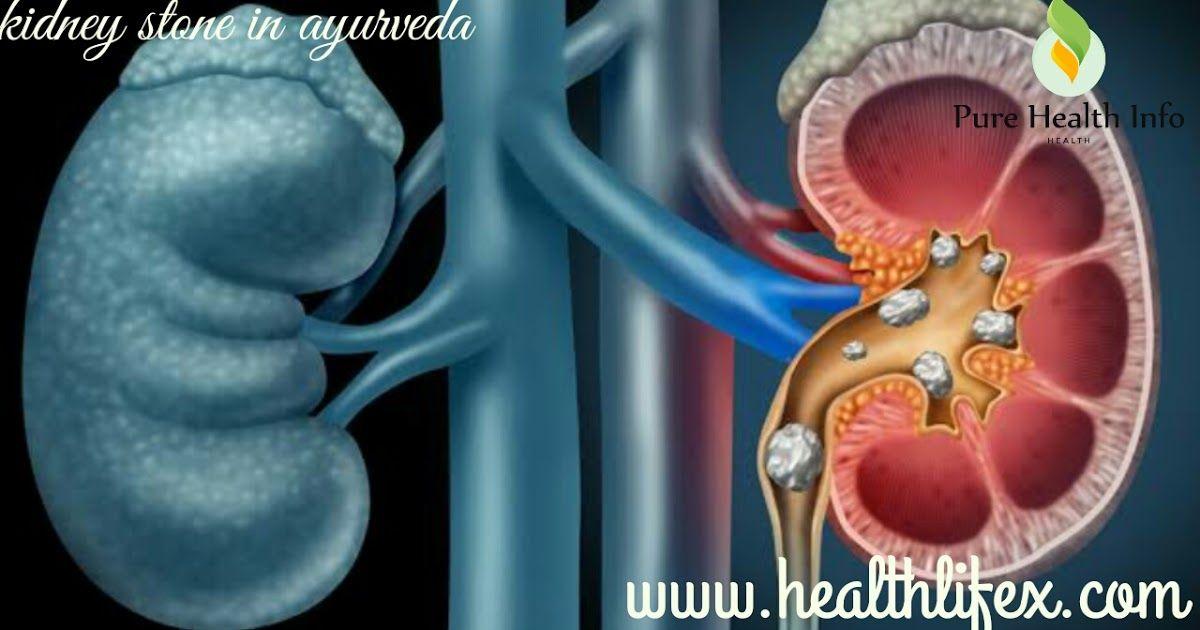 À¤ªà¤¥à¤° À¤• À¤‡à¤² À¤œ Kidney Stone In Hindi Kidney Stone Diet In Hindi Pathri Ka Ayurvedic Ilaj Kidney Stone Baba Ramdev Hea Kidney Health Healthy Kidneys Kidney Stones