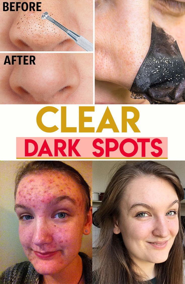 Park Art My WordPress Blog_Amino Acid Hair Treatment Before And After