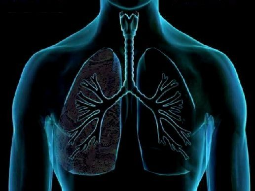 HOW TO CLEAN THE LUNGS IN 3 DAYS | Lunges, Healthy lungs ...
