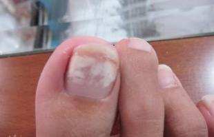4d733ff067a5319157f3813610efe85f - How To Get Rid Of White Spots On My Toenails