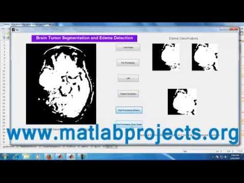 Pin by matlabprojects on Best Bio Medical Projects | Image