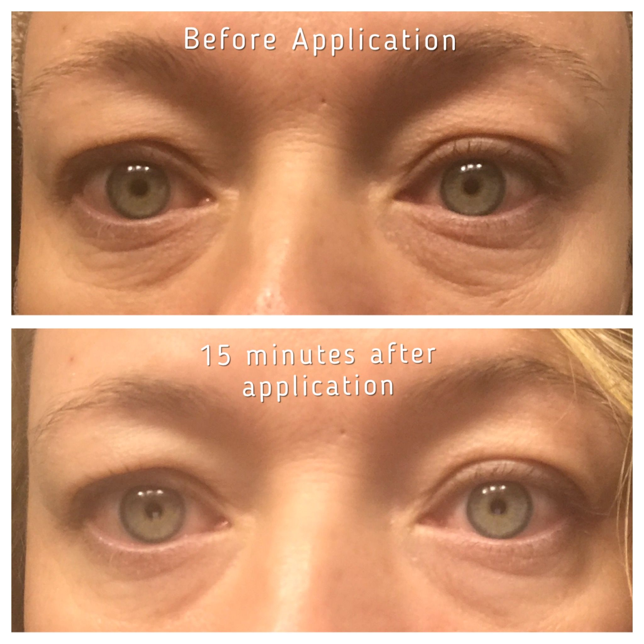 Eye Aspire serum...Limelight by Alcone. All natural skincare.