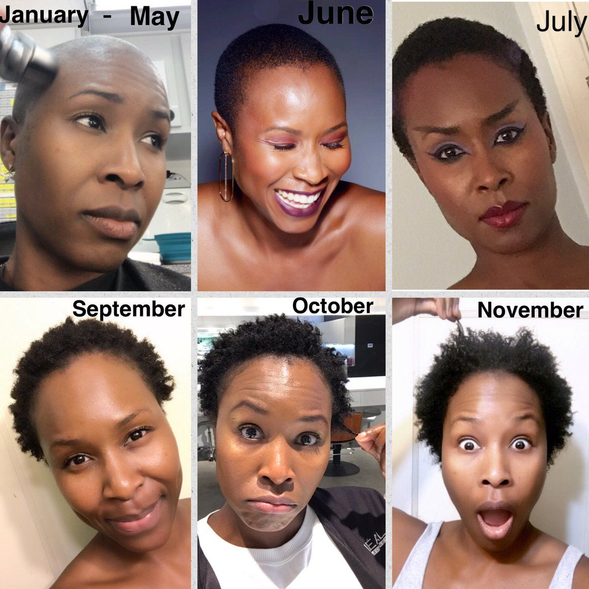 Sydelle Noel on (With images) Hair growth pills, Hair