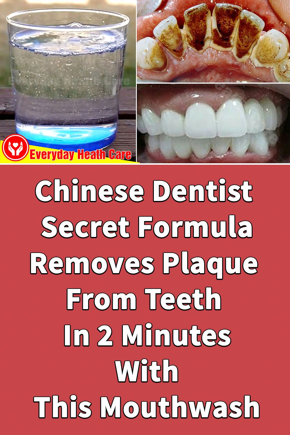 Pin on How To Whiten Teeth Naturally Everyday Health Care