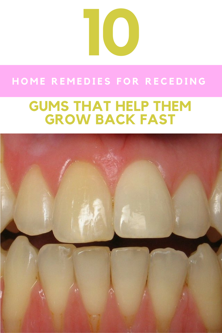 IfYou Have Receding OrUnhealthy Gums, Here Are Proven Solutions forecasting