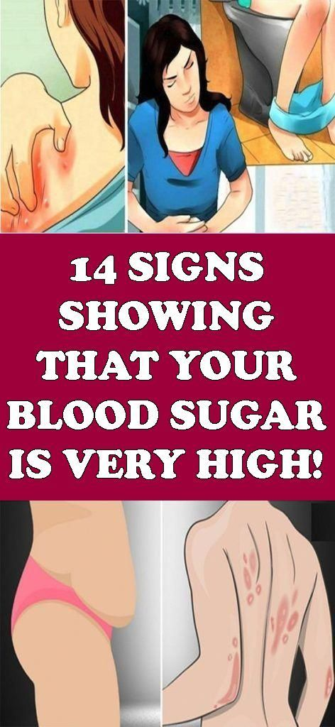 14 SIGNS SHOWING THAT YOUR BLOOD SUGAR IS VERY HIGH #healthyonline #healthy #health #womens #healthy...