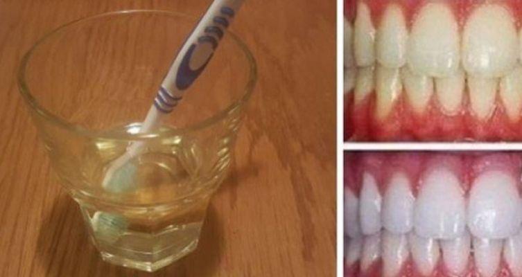 remedios efectivo para blanquear los dientes