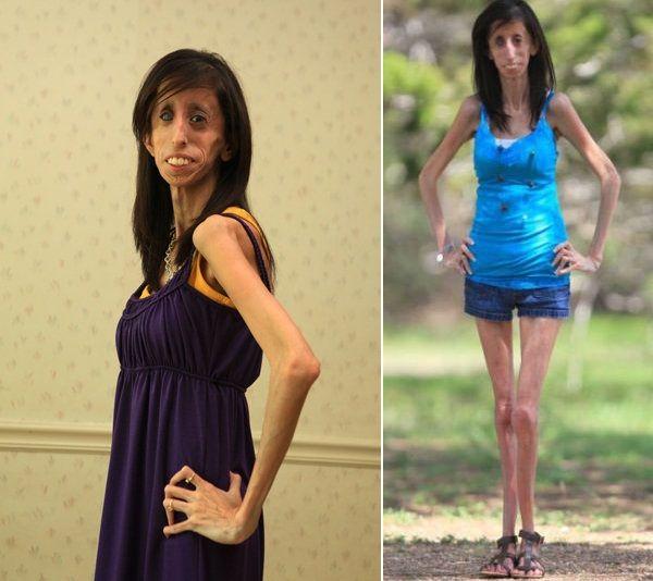 Skinniest person on earth | Skinny people, Skinny, Dresses