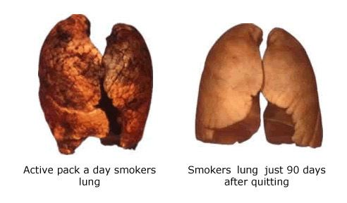 Smokers Heart