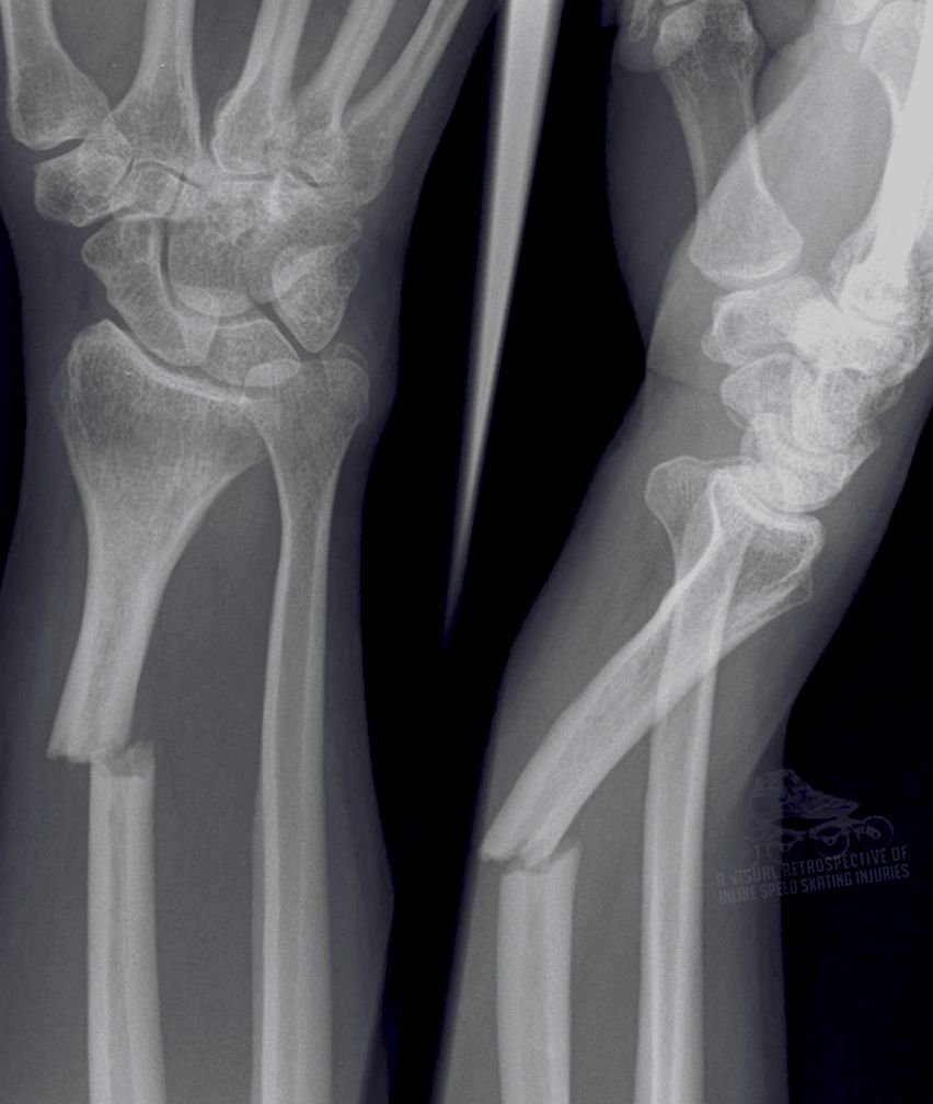 Fractured Radius Students Will Be Taught About Different Types Of