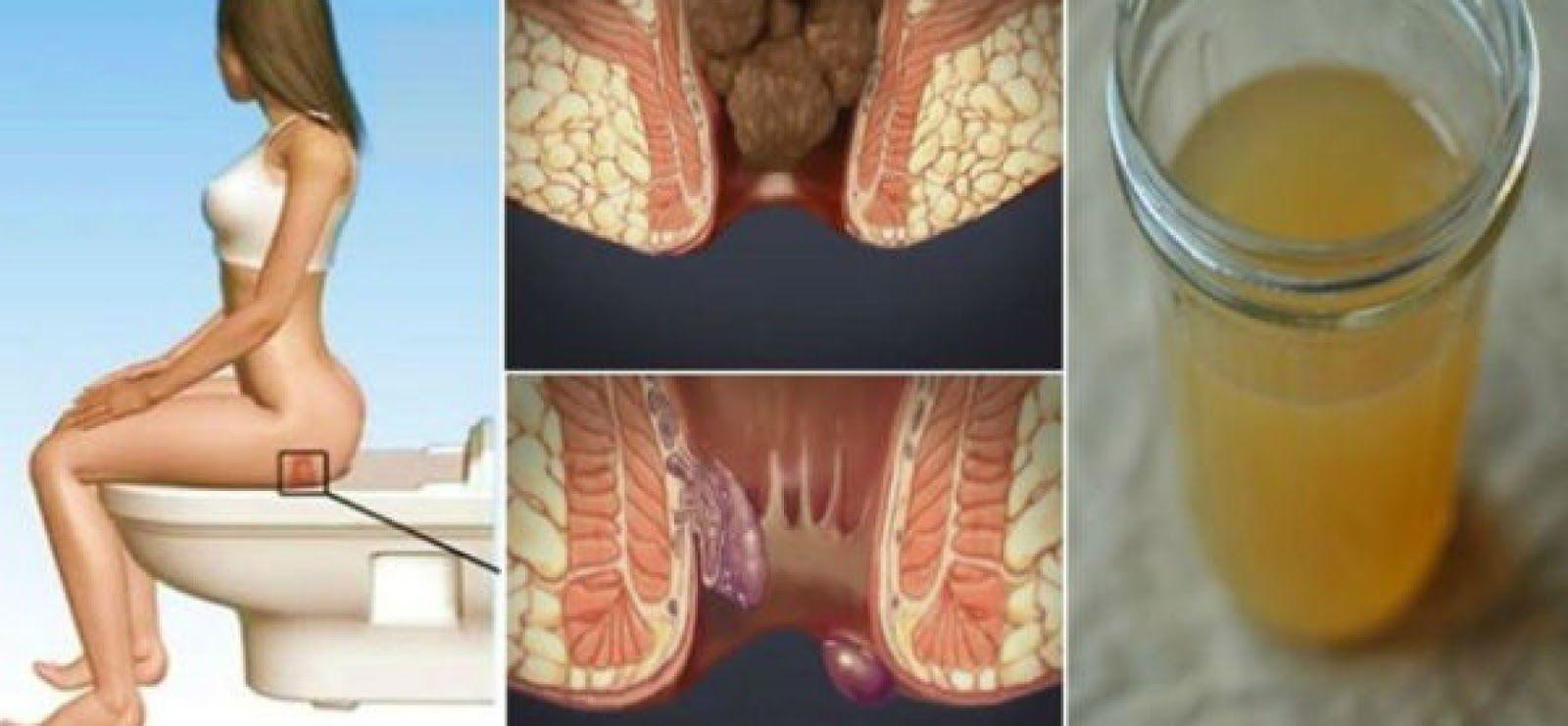 Remedios naturales para combatir las hemorroides