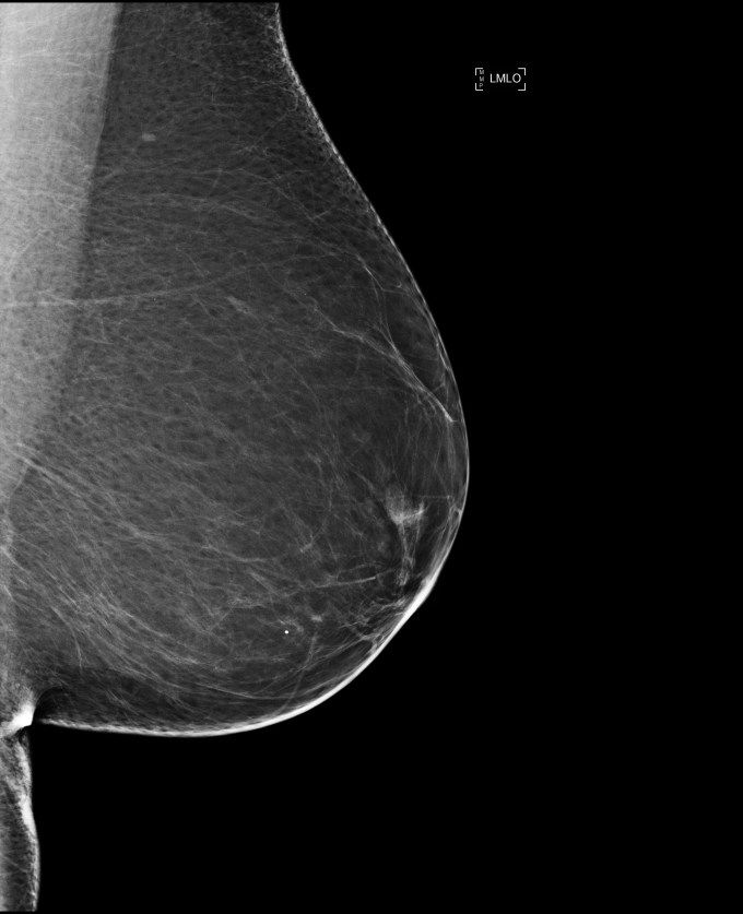 When mammograms lie: How cancer can sneak past our greatest screening techniques   canada.combreast tissue