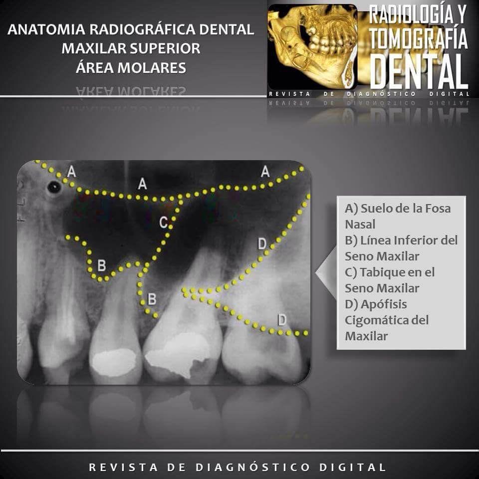 Maxilar Superior área Molares Anatomíadentaria Radiografiadental Anatomíaradiografica Molares Molaressuperiores Radioytomod Dental Poster Movie Posters