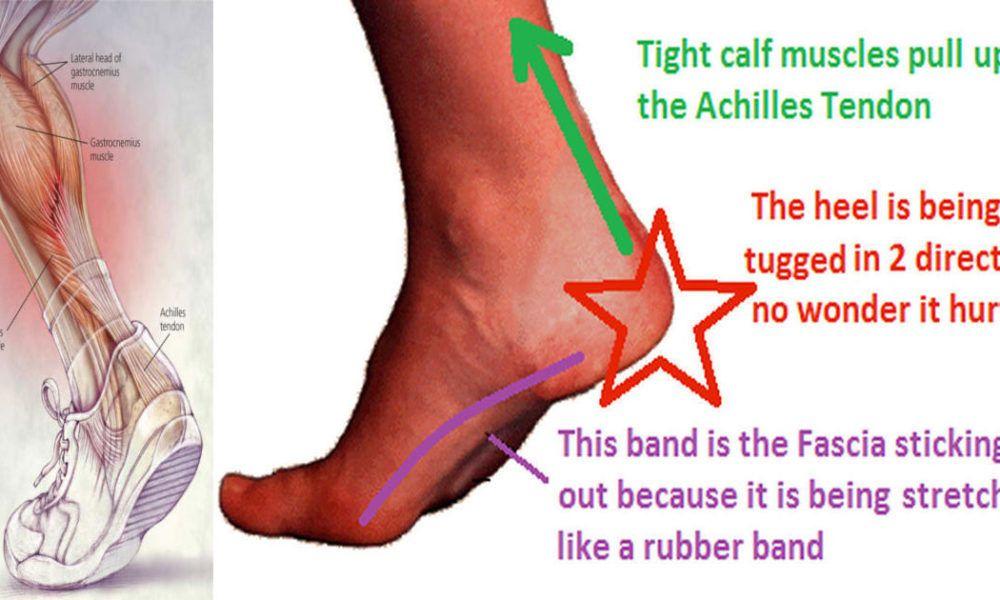 Treatment Of Achilles Tendon Degeneration