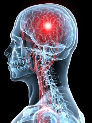 cerebrovascular accident - Google zoeken