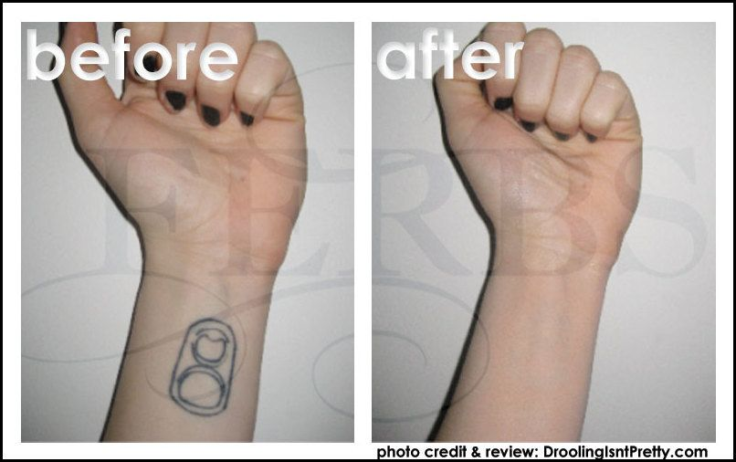 Getting Skin Color Tattoo To Cover Tattootattoo Themes Idea Tattoo Themes Idea Laser Tattoo Skin Color Tattoos Tattoo Removal