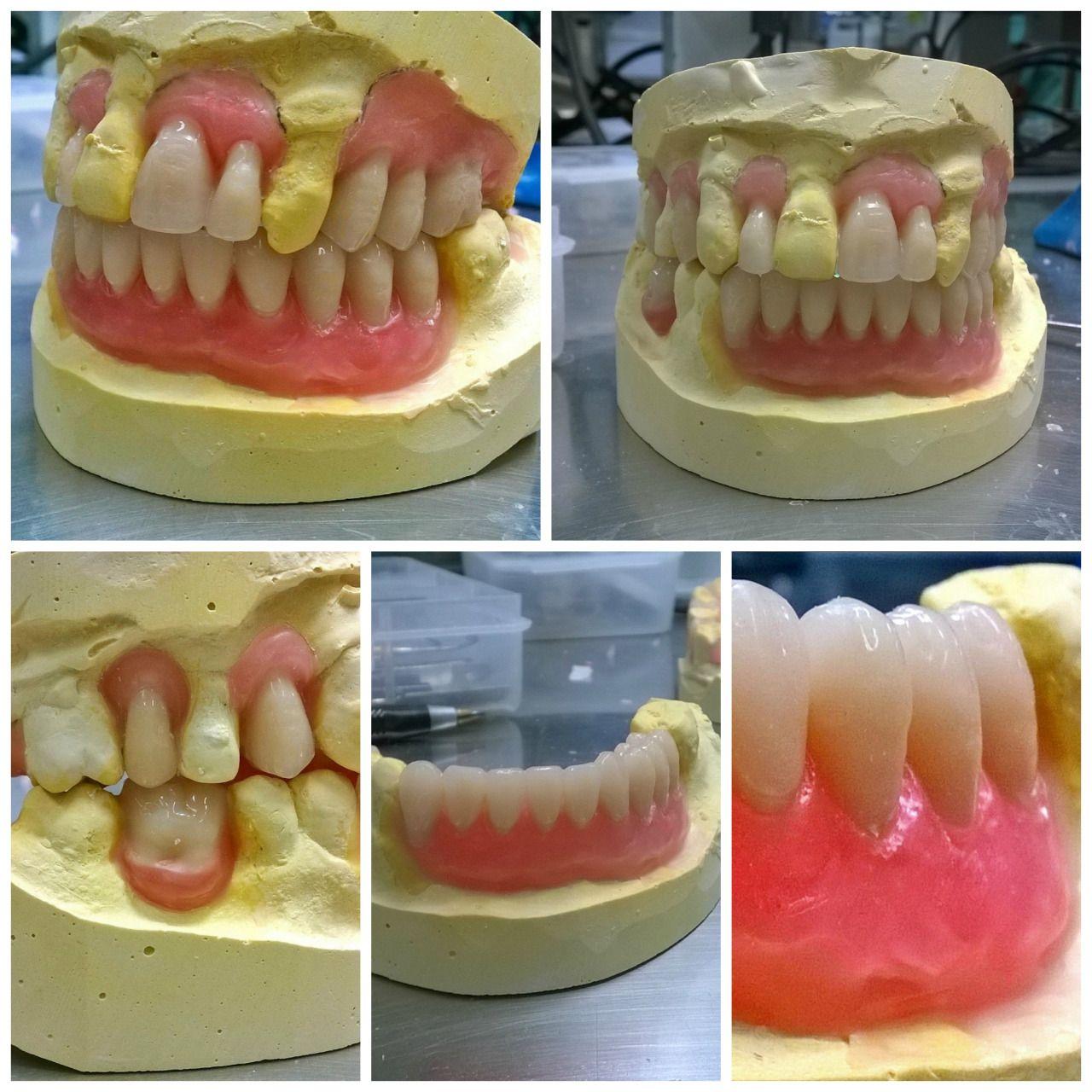 Jul 14, 2015 Happy moments, Orthodontics, Orthodontic