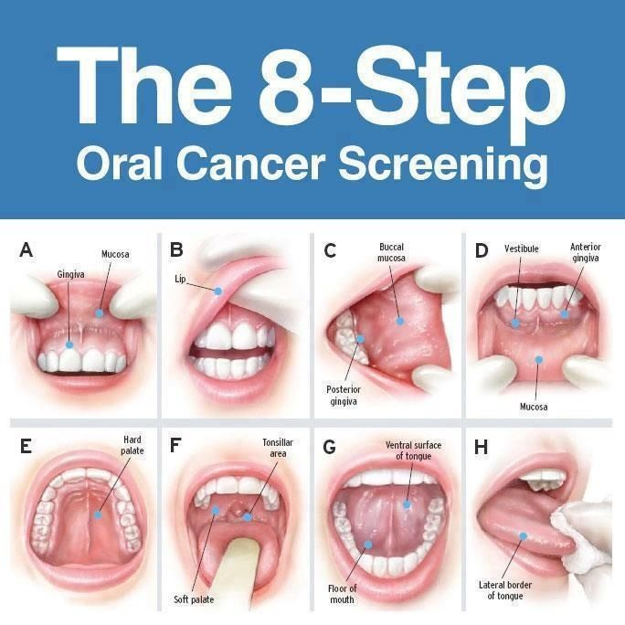 8 Step Oral Cancer Exam Find your practice's hidden potential! www.TanyaBrownDMD.com