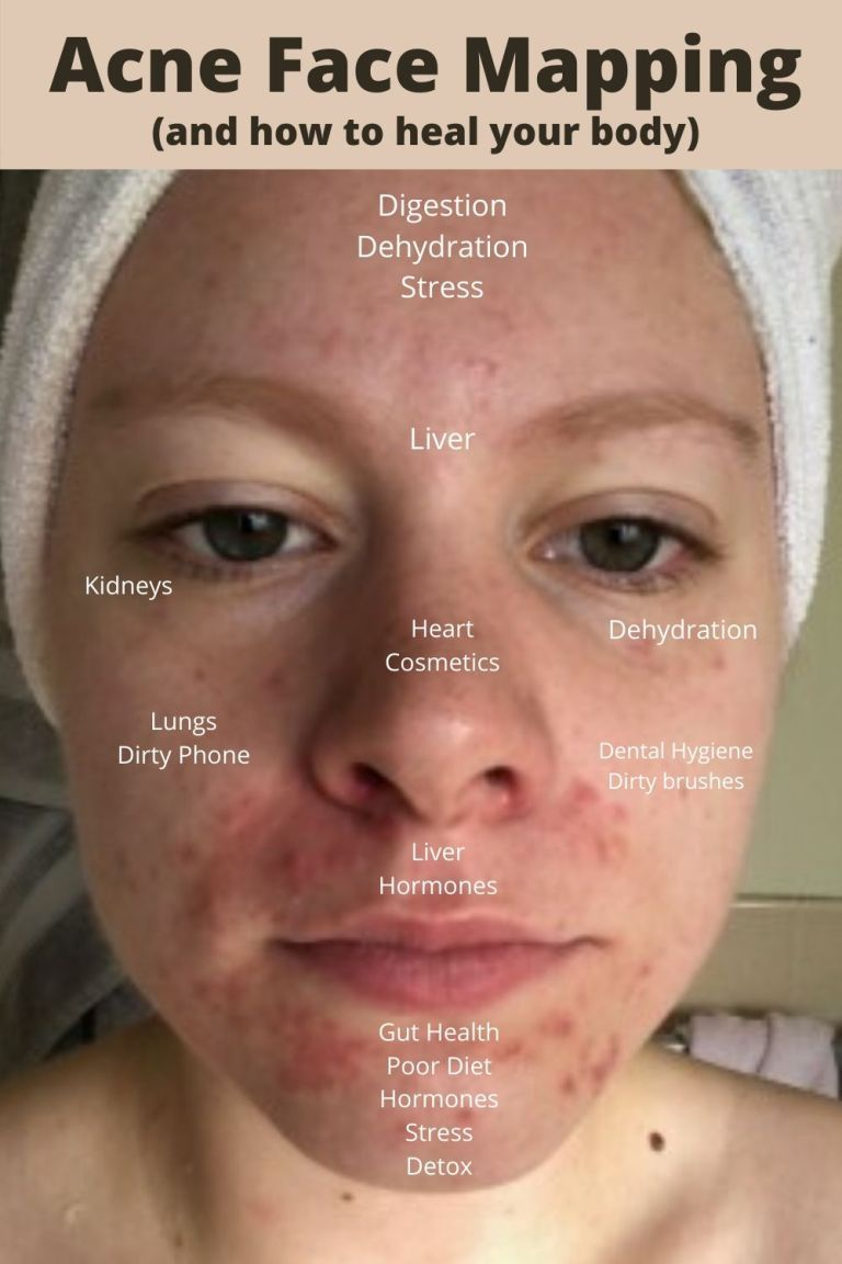 Face Mapping What Your Acne Is Saying About Your Health In 2020