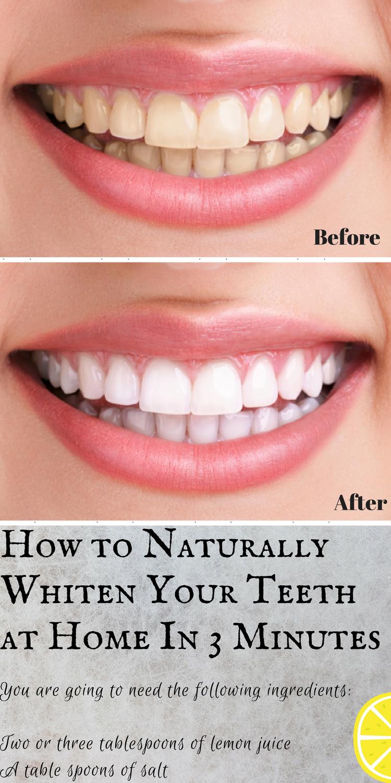Beauty Natural Remedies Natural Whitening Teeth Whitening Teeth